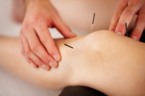 Post Surgical Recovery with Acupuncture in Santa Rosa